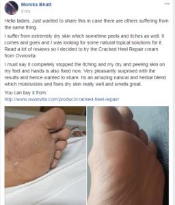 Cracked-Heel-Repair-Review-2
